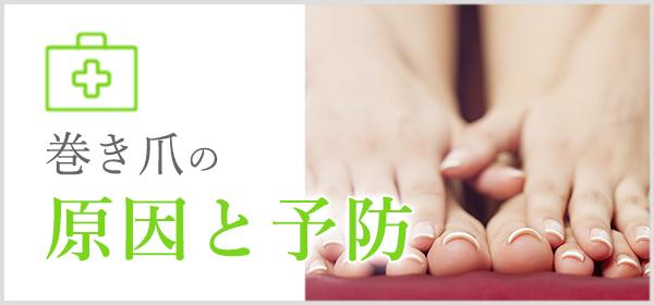 巻き爪の原因と予防