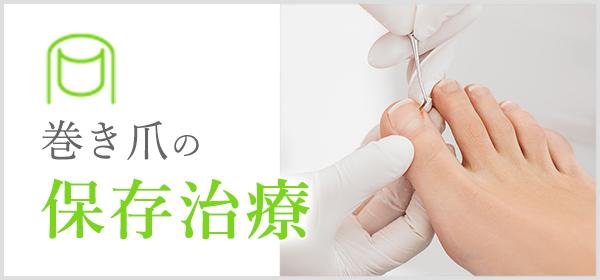 巻き爪の保存治療