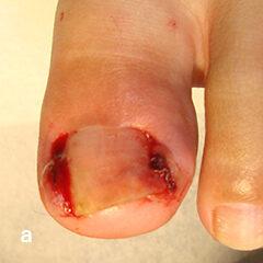 Gutter法(ガター法)による治療 a両側の陥入爪