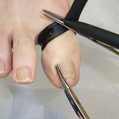 爪甲の切除