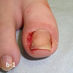 肉芽形成を伴う両側の陥入爪