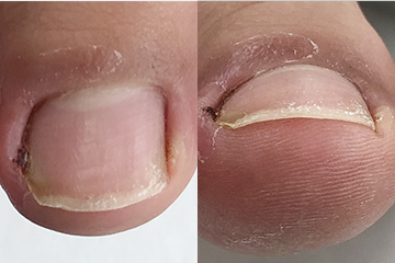 手術症例(フェノール法)手術前