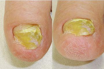 爪白癬の治療例 処置前