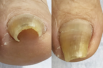 ネイル・エイドを使った巻き爪矯正治療例 手術前