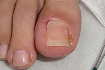 症例2は食い込んでいる部分を手術で治療した