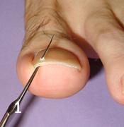 爪甲に穴を開け、腹側からワイヤーを刺入する。