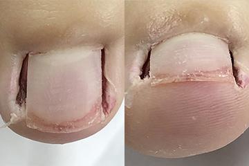 手術症例(フェノール法)手術直後
