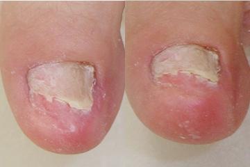 爪白癬の治療例 処置後