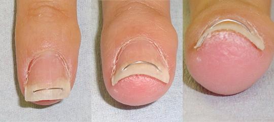 弾性ワイヤーを使った巻き爪矯正治療例 装着直後