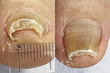 ネイル・エイドを使った巻き爪矯正治療例 手爪の先端を直線にカットしたところ:爪が厚い!