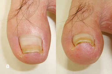 3TO-VHO®法 a 治療前 爪甲基部から遠位端までの弯曲を認める