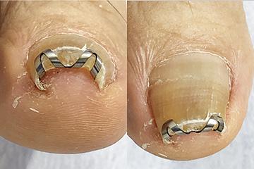 ネイル・エイドを使った巻き爪矯正治療例 ネイル・エイドを装着したところ