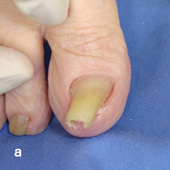 爪甲剥削法 a 高度な陥入爪に対して爪甲剥削術施行