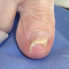 爪甲剥削法 b 施行直後:爪の彎曲が改善している
