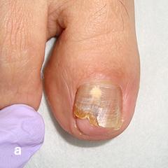 爪白癬に対する部分剥削法 A 治療前:爪白癬による爪甲白濁を認める