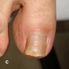 爪白癬に対する部分剥削法 C 処置後9ヶ月 処置後外用薬で加療、爪白癬の改善を認める