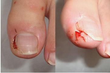 爪甲部分(爪棘)切除による治療治療