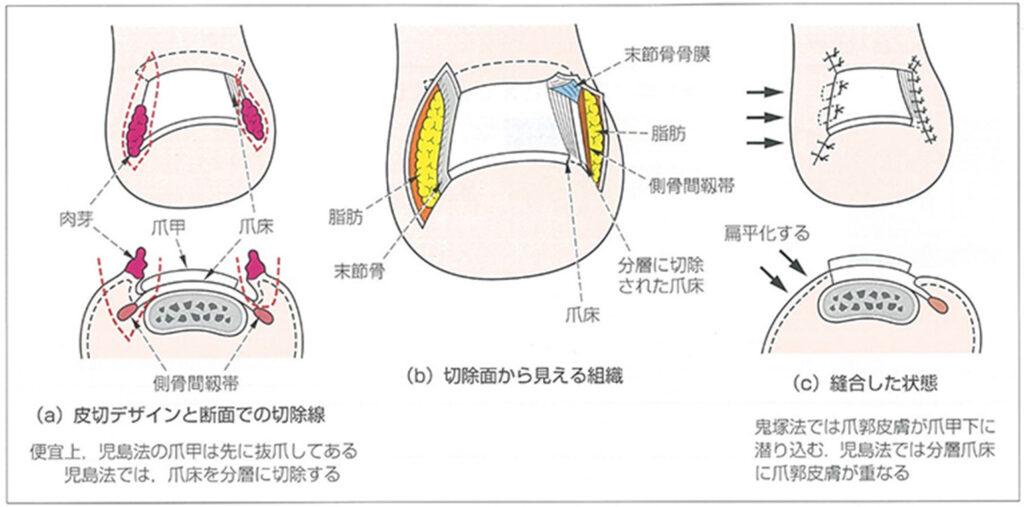 鬼塚法(同一指に向って左側)と児玉法(同右側)
